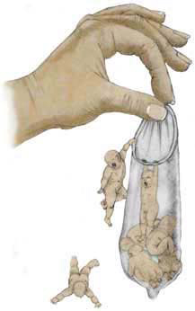 Barnbegränsning